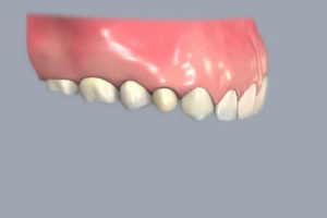 We offer a number of different types of dental crowns.