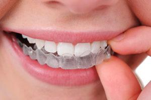 Orthodontics Invisalign provider