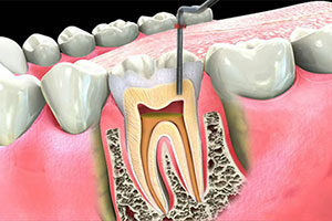 Root canal therapy to relieve tooth pain