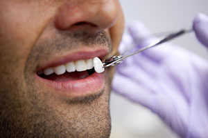 dental veneers worthington and chillicothe