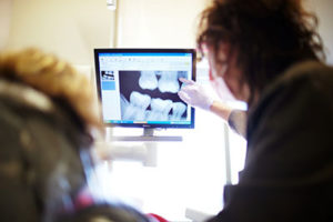 Digital x-ray dental imaging