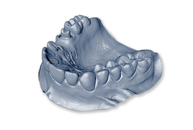 Jaw Impression For Dental Implants